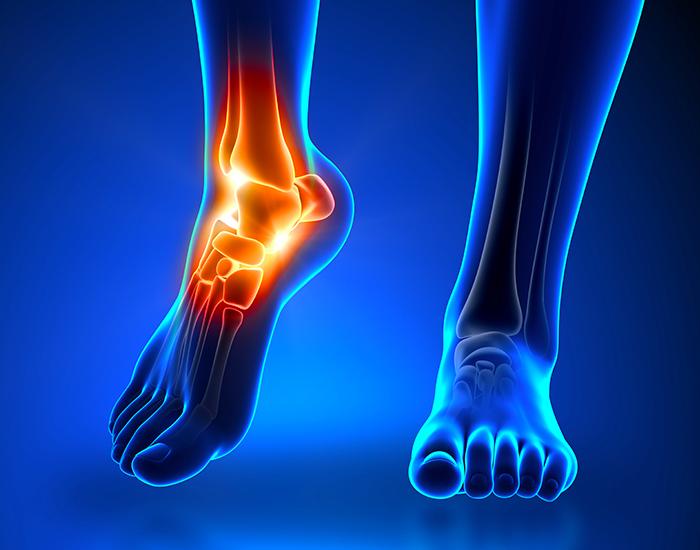 ortopedia-del-piede
