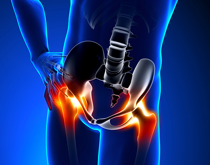 ortopedia-anca